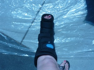 boot for broken ankle